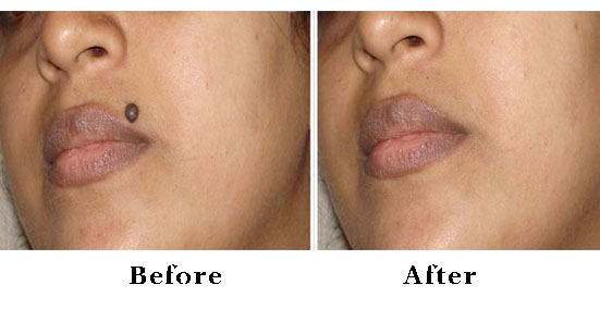 Best physician for facial mole removal